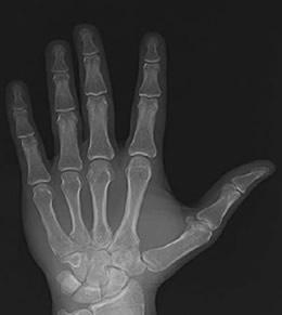 raio X(1)